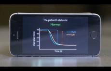 Мобильник поможет определить сотрясение мозга